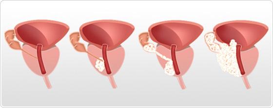 adenocarcinoma prostatico gleason 4 3 5